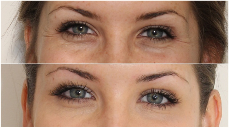 eye fillers cost uk