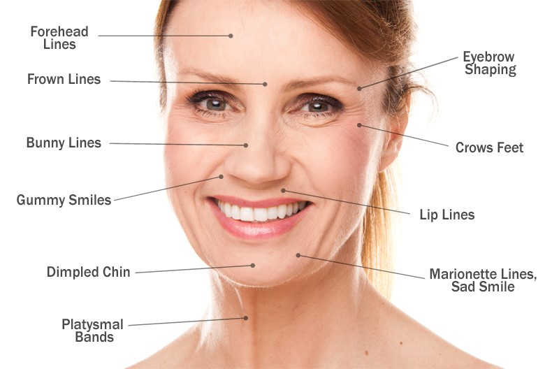 botox-lica-2