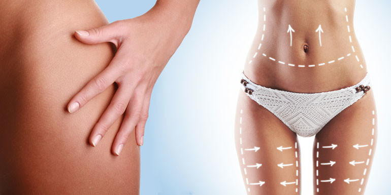 female-body-with-the-drawing-arrows-on-it-isolated-on-white-fat-lose-liposuction-and-cellulite